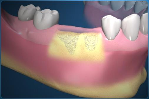 Качественные и недорогие стоматологические услуги в клинике «Марита» 32b94688-bf5f-4a9b-ba55-7e211962bbb2
